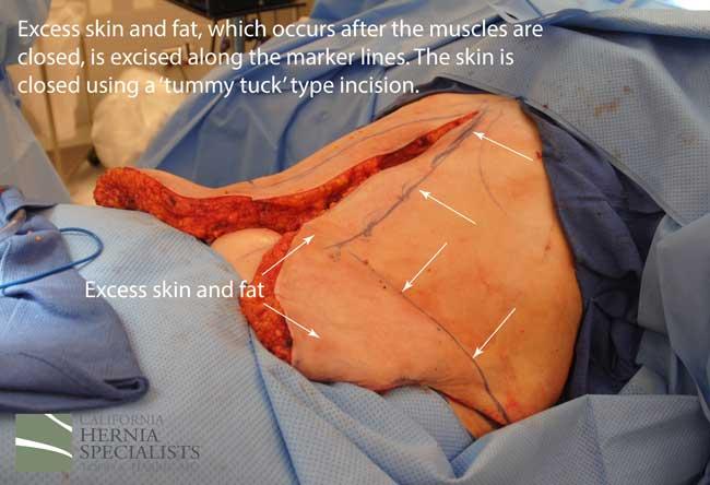 Sex after inguinal hernia surgery photos 81