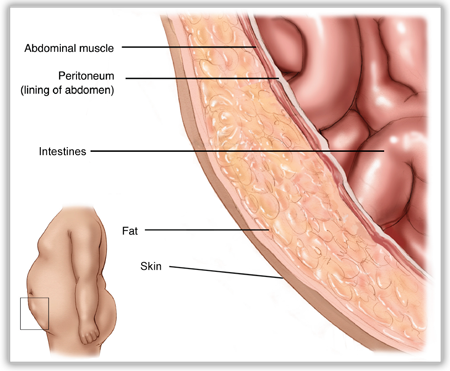 Layers of the Abdominal Wall